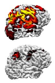 brains020708